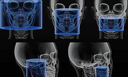 Fotografia w laryngologii